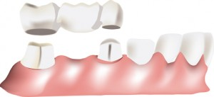 replace teeth with a dental bridge in Hackettstown, New Jersey