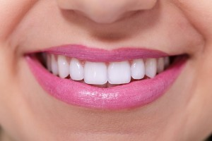 Tooth bleaching in Hackettstown, New Jersey