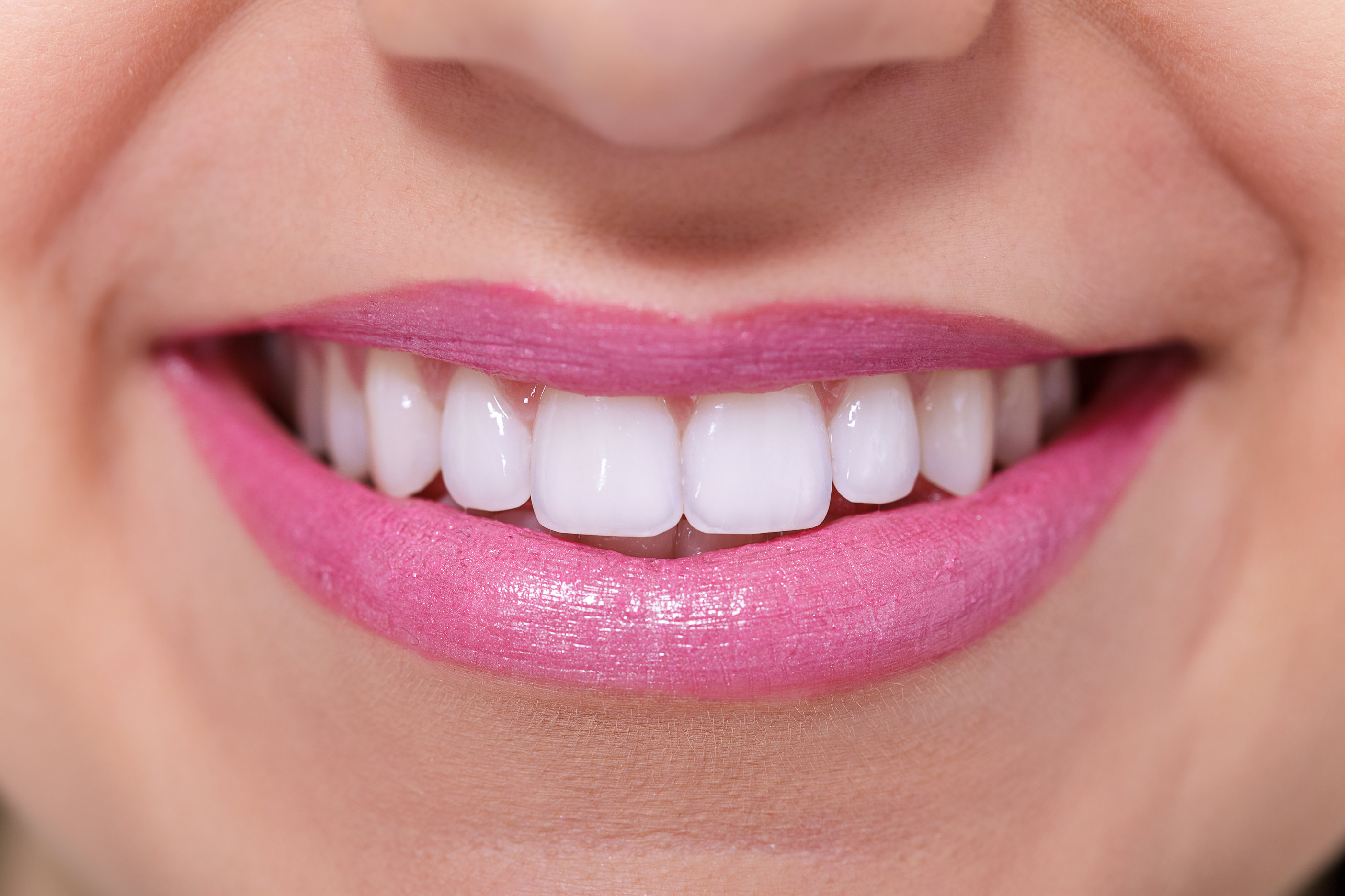 Teeth Whitening In Hackettstown Nj
